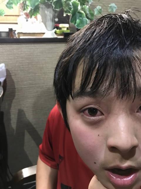 救急外来から戻り、ママとふたりでおうちやきにくを食べる次男坊。目は真っ赤。