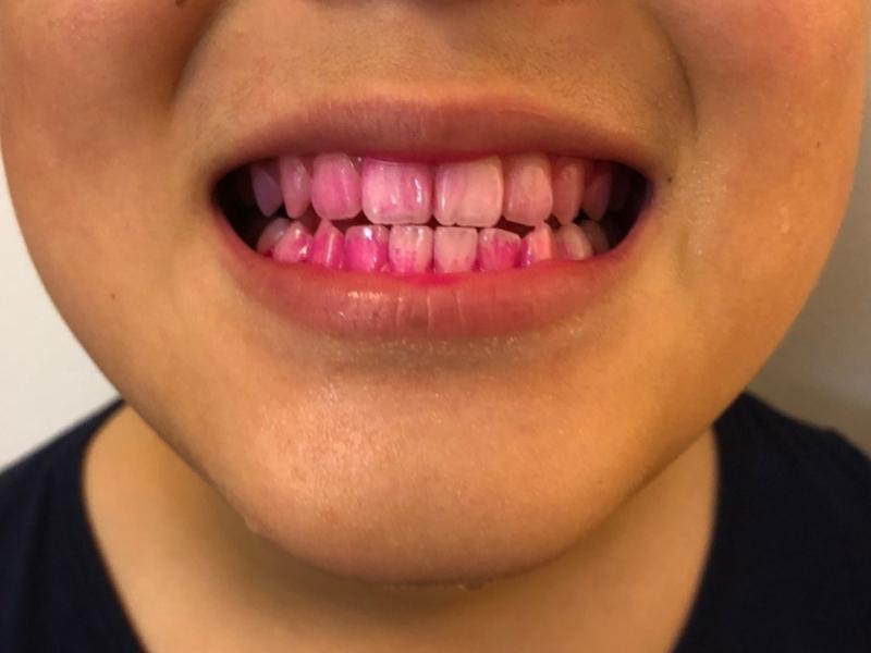 電動歯ブラシを左右に動かした時(前回の写真)