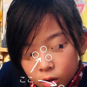 子供の水いぼ治療